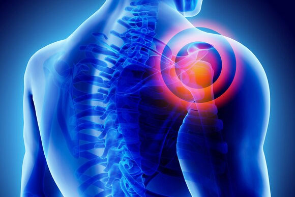 Frozen shoulder treatment in delhi, Frozen shoulder non surgical treatment in delhi, Pain Specialist In Delhi