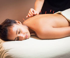 Acupuncture In Delhi